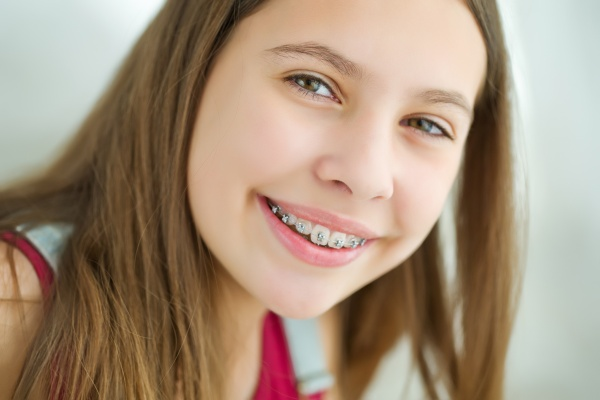 Why Is There Fast Treatment for Crooked Teeth?